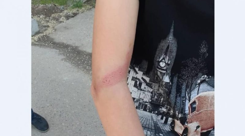 В Капшагае при краже автозапчастей жестоко были избиты подростки